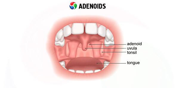 Adenoides: causas, síntomas, diagnóstico, tratamiento | Competente ...